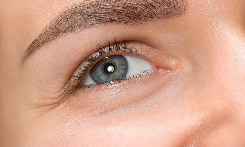 cum să elimini grăsimea superioară a ochilor